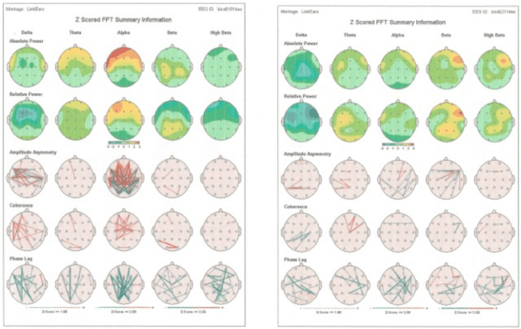 Brain scan - cognitive difficulty - cognitive enhancement - Gillespie Approach–Craniosacral Fascial Therapy